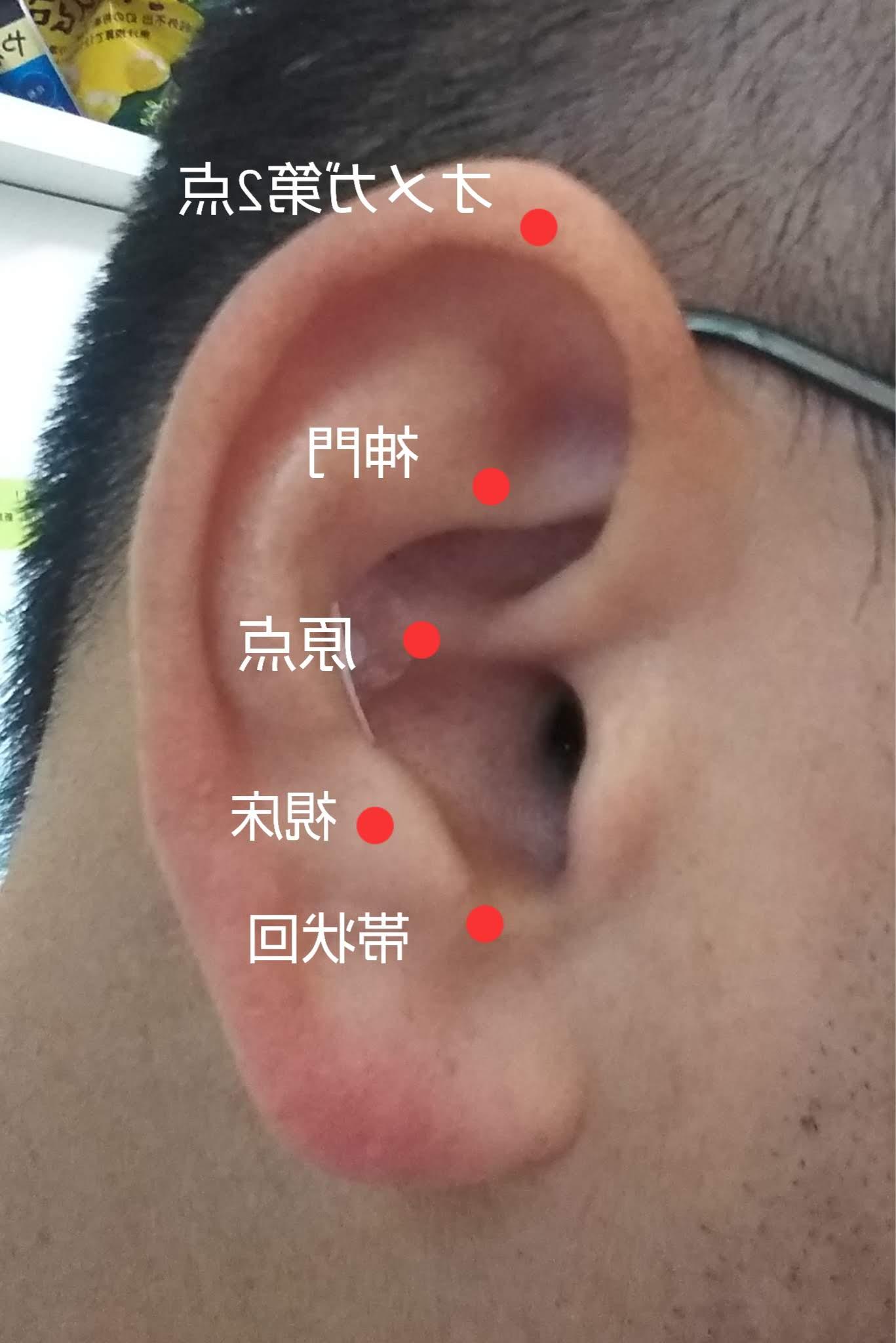 耳ツボ療法